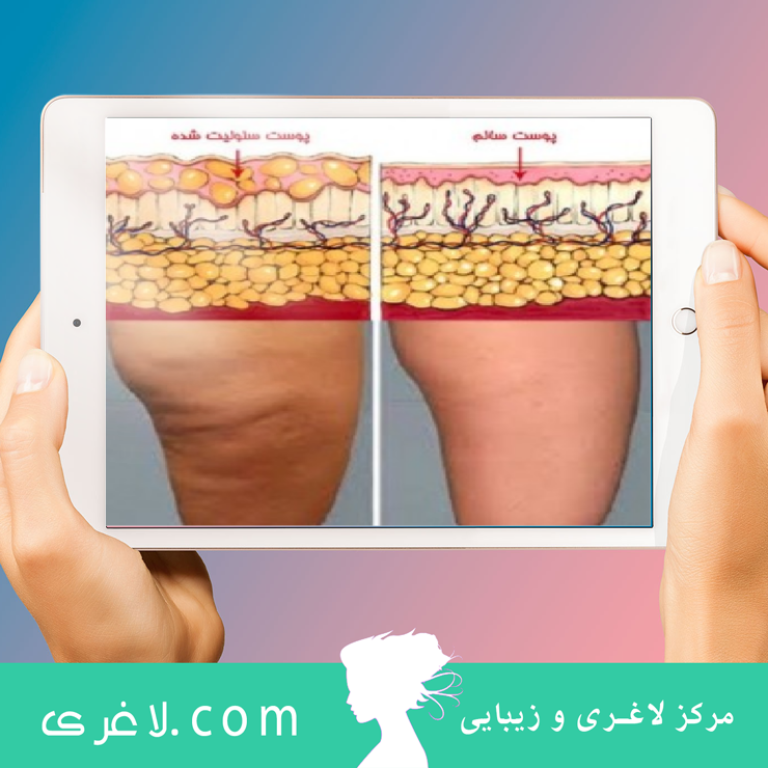 RF.CELLULITE TREAT